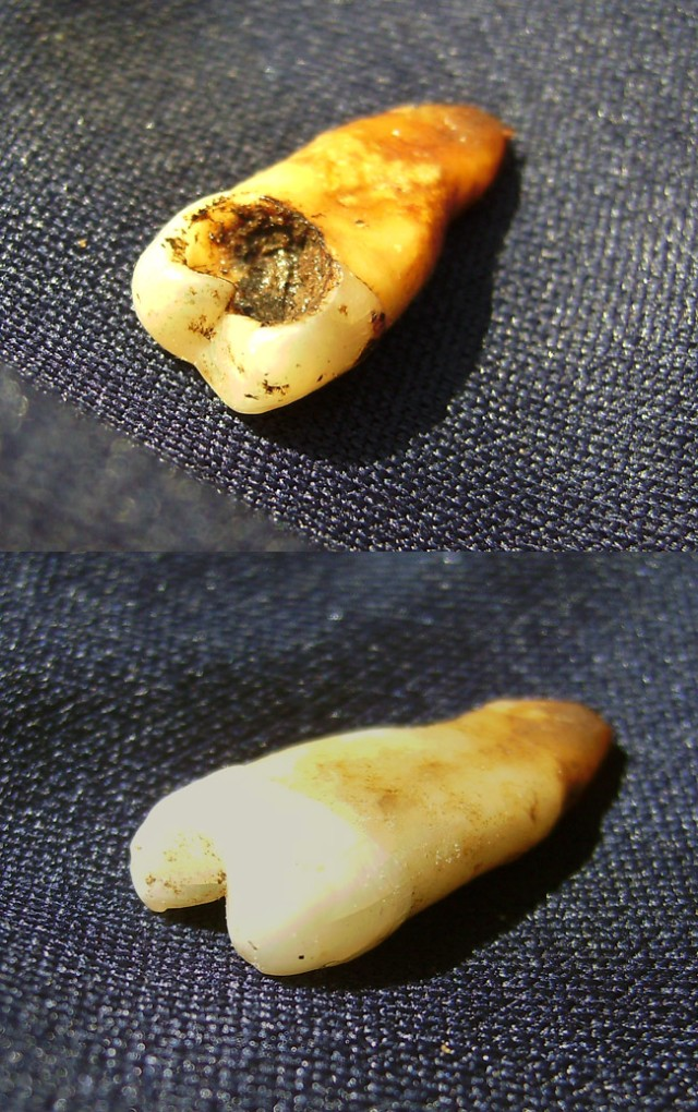 human tooth? maybe.  half of a tooth, definitely.
